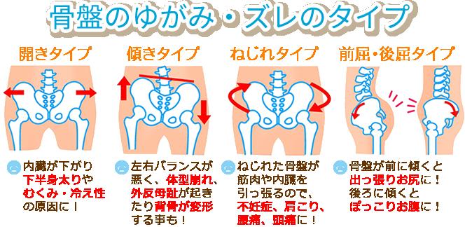 「骨盤矯正」の画像検索結果